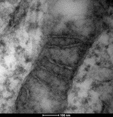 TEM images of sample prepared using UA-Zero EM Stain in 20% ethanol staining solution.