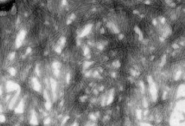 UA-Zero Application: Tobacco Mosaic Virus (TMV) negative staining