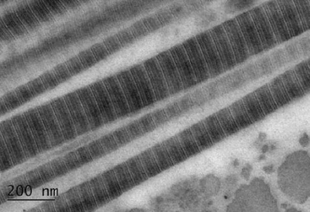 Uranyl Acetate vs. UA-Zero: Human Scera Collagen Fibrils
