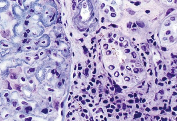 Using Histocryl
